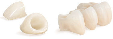 Crowns and Bridges from Dr. Nelson V. Berardinelli in Murrysville, PA